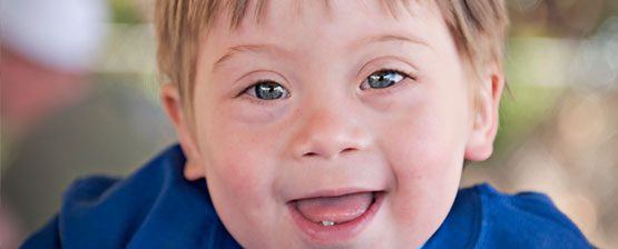 My Baby's Downs Syndrome Diagnoses